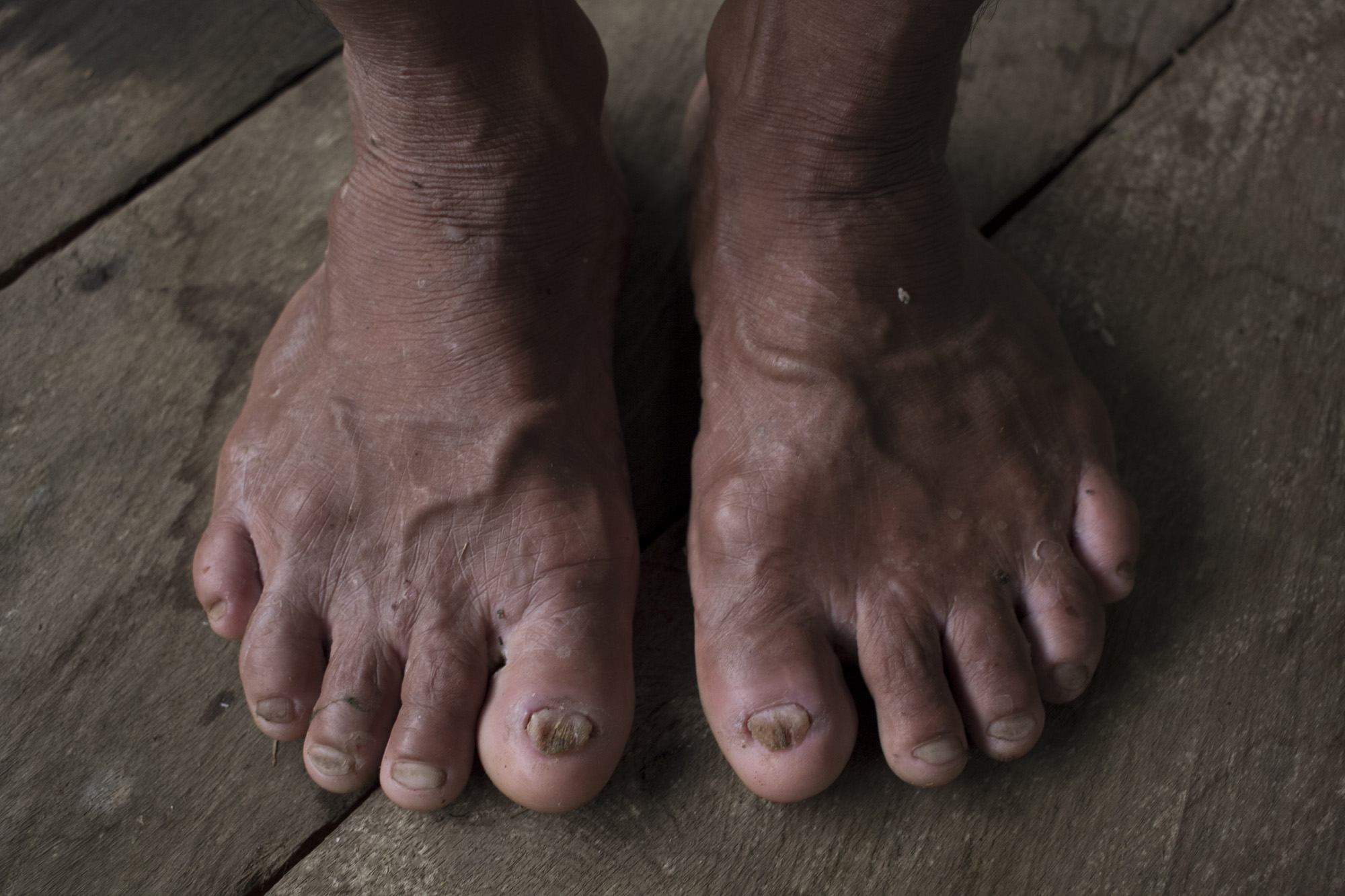 The feet of Lukas, a Punan Adiu hunter. Punan is well known as a hunter tribe in Borneo. 2020.